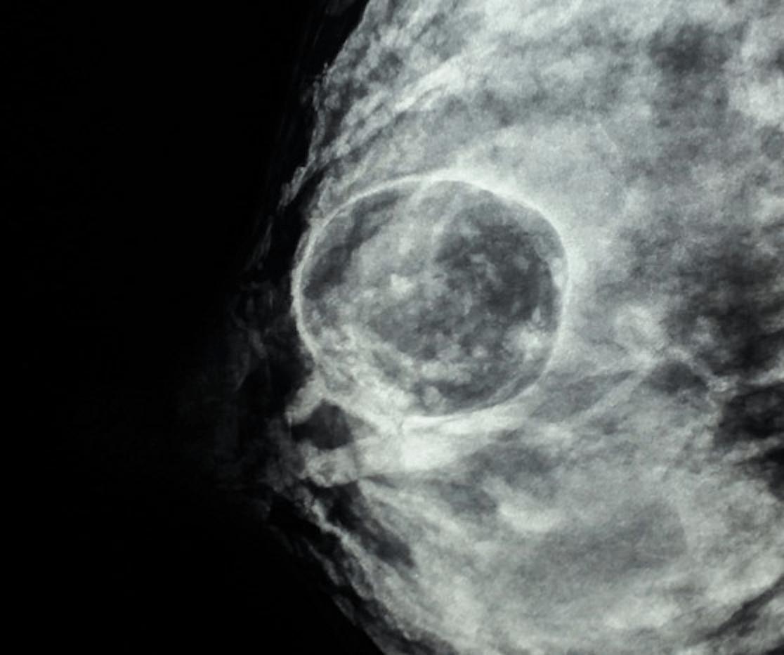 """A mamografia mostrou um parênquima fibroglandular extremamente denso, com proeminência dos ductos principais(achados esperados para a idade e o período lactacional). Apesar disso, foi bem identificado na mama direita um nódulo com forma redonda, hipodenso e com margem circunscrita, medindo cerca de 3,0 cm. Classificação: achados benignos (BI-RADS® 2). Esse é um dos aspectos mamográficos da galactocele e sugere alta concentração de gordura na constituição do cisto, situação conhecida como """"pseudolipoma""""."""