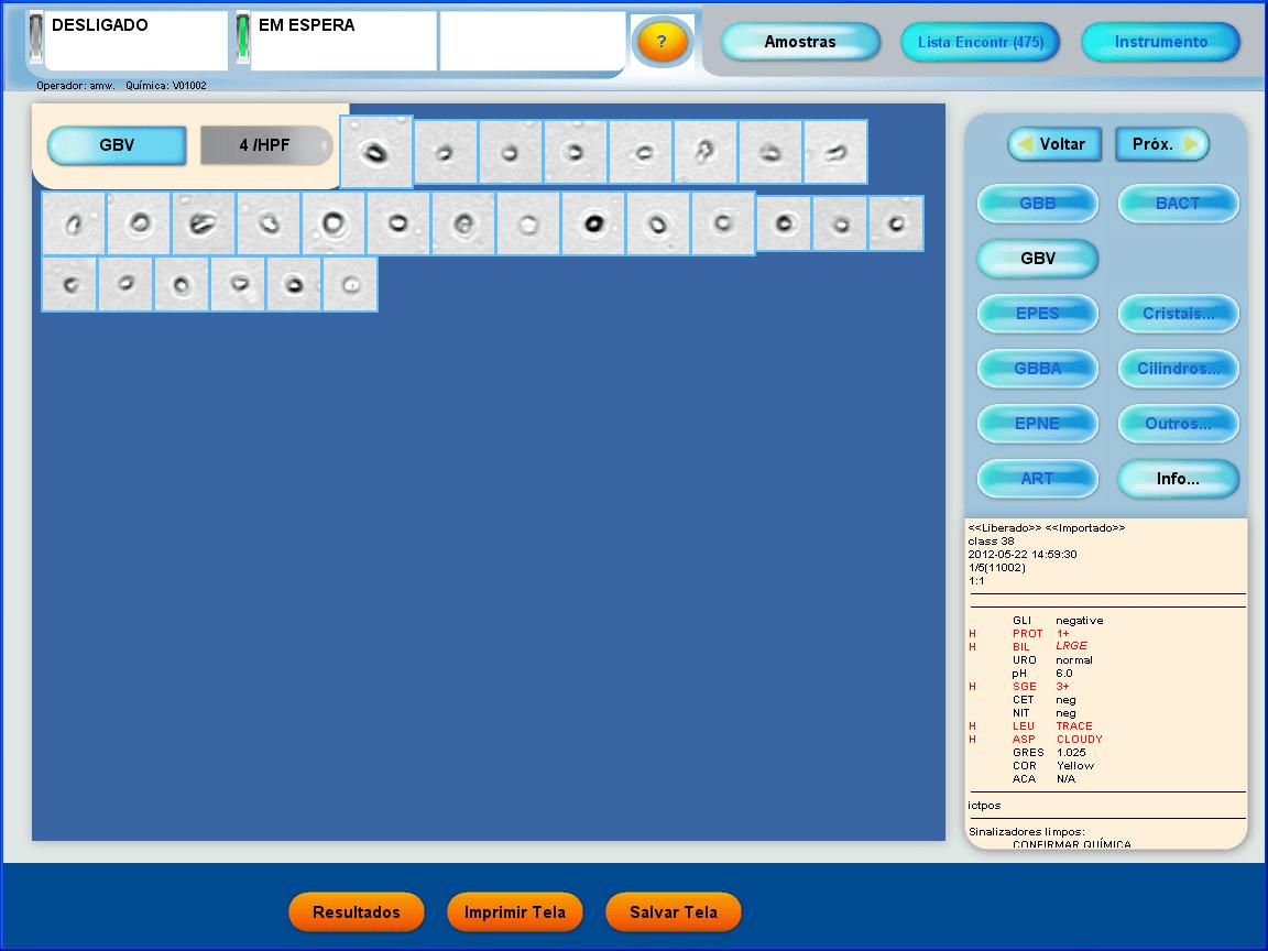 Exemplo de tela de resultados na categoria selecionada Glóbulos Vermelhos